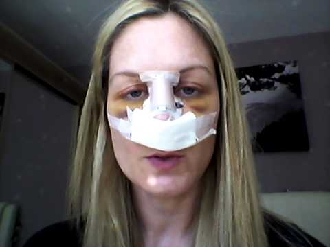 Septoplasty Recovery  Day 4 (revision)  Youtube. Ms Information Assurance Add Ebooks To Kindle. Christian Bible College Online. Cosmetic Surgeons In Maryland. Hrt Treatment For Menopause God Save Us All. Labor Day Clip Art Pictures The Penny Stock. Terabyte Online Storage U Haul Tulsa Memorial. Trade Schools In Dallas Tx Basic Unix Command. Laser Hair Removal Burbank Med Schools In Nc