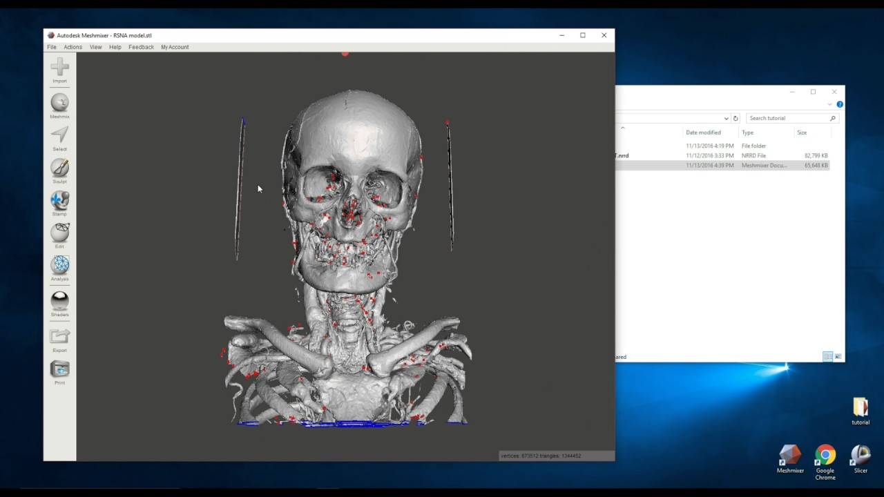 Creating 3D Printable Medical Models and STL Files for Free