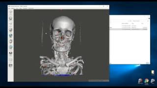 Creating 3D Printable Medical Models for Free: Embodi3D.com, 3D Slicer, and Meshmixer