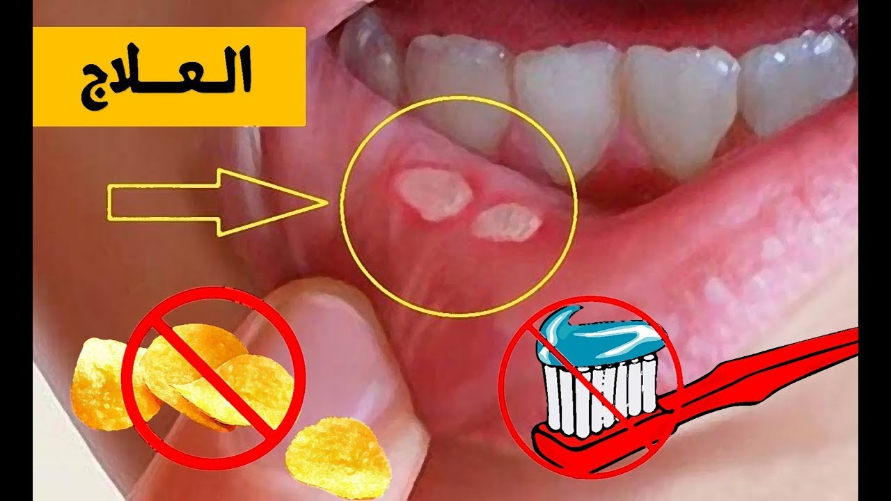 حمو الفم