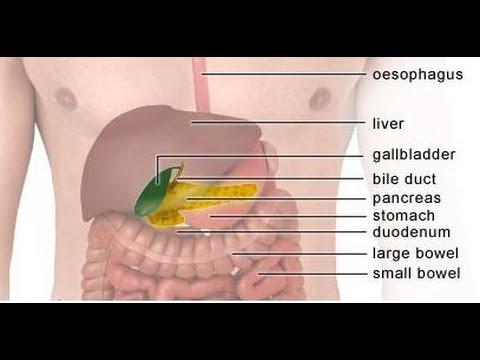 Bato sa Apdo (Gallbladder Stones) - ni Doc Ric Naval (Surgeon) #1 - YouTube