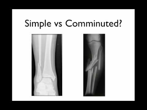 How to describe a fracture - YouTube