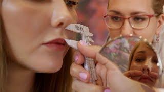 VY пластика губ и подтяжка висков. Консультация пластического хирурга Илоны Кочневои.