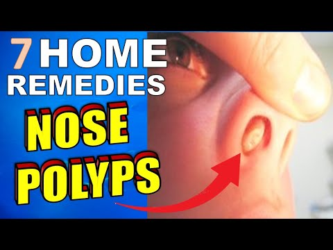 7-natural-treatments-&-home-remedies-for-nasal-polyps
