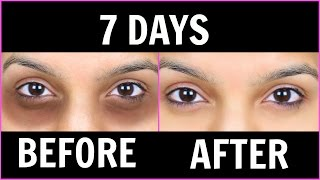 Remove Dark Circles (काले घेरों) - 6 Magical Remedies (100% Effective) |Anaysa