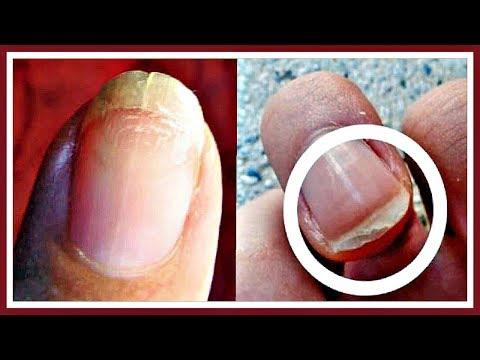 ЭТИ СРЕДСТВА по уходу за ногтями я приобретать НЕ РЕКОМЕНДУЮ!!!