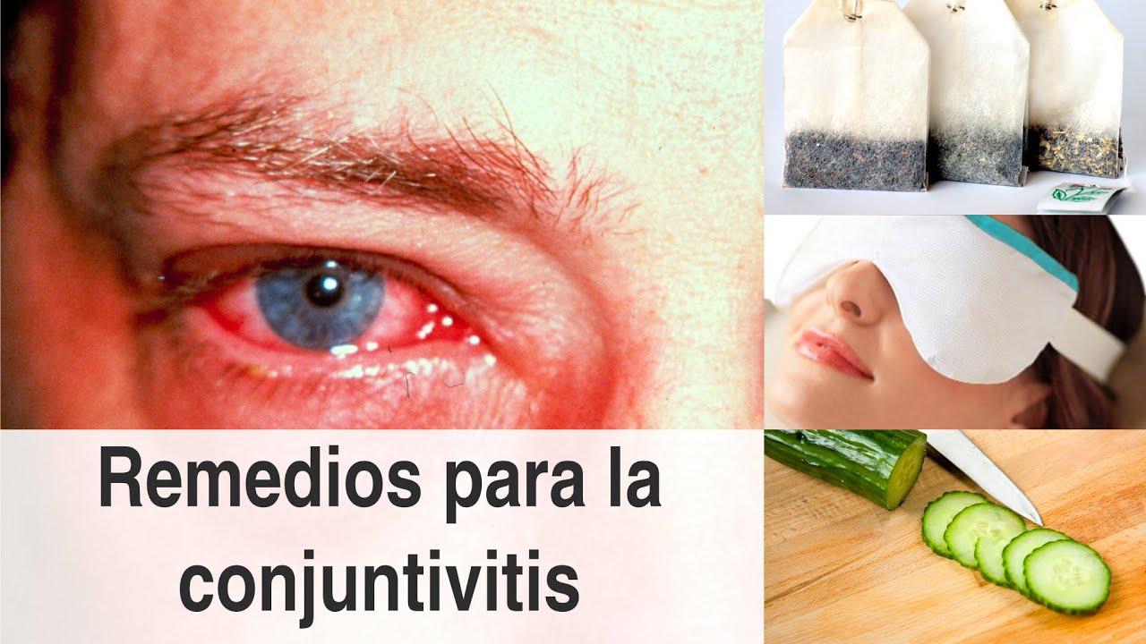 Remedios naturales para la conjuntivitis y consejos para ...