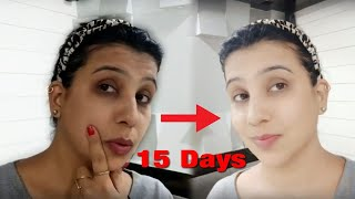 I use this for ones&get shocking results on my face|DIY|all in one mask for all skin¦2018¦food&face
