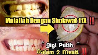 WOW ‼️PEMUTIHAN GIGI HANYA DALAM 2 MENIT, Begini cara a memutihkan gigi & menghilangkan karang gigi?