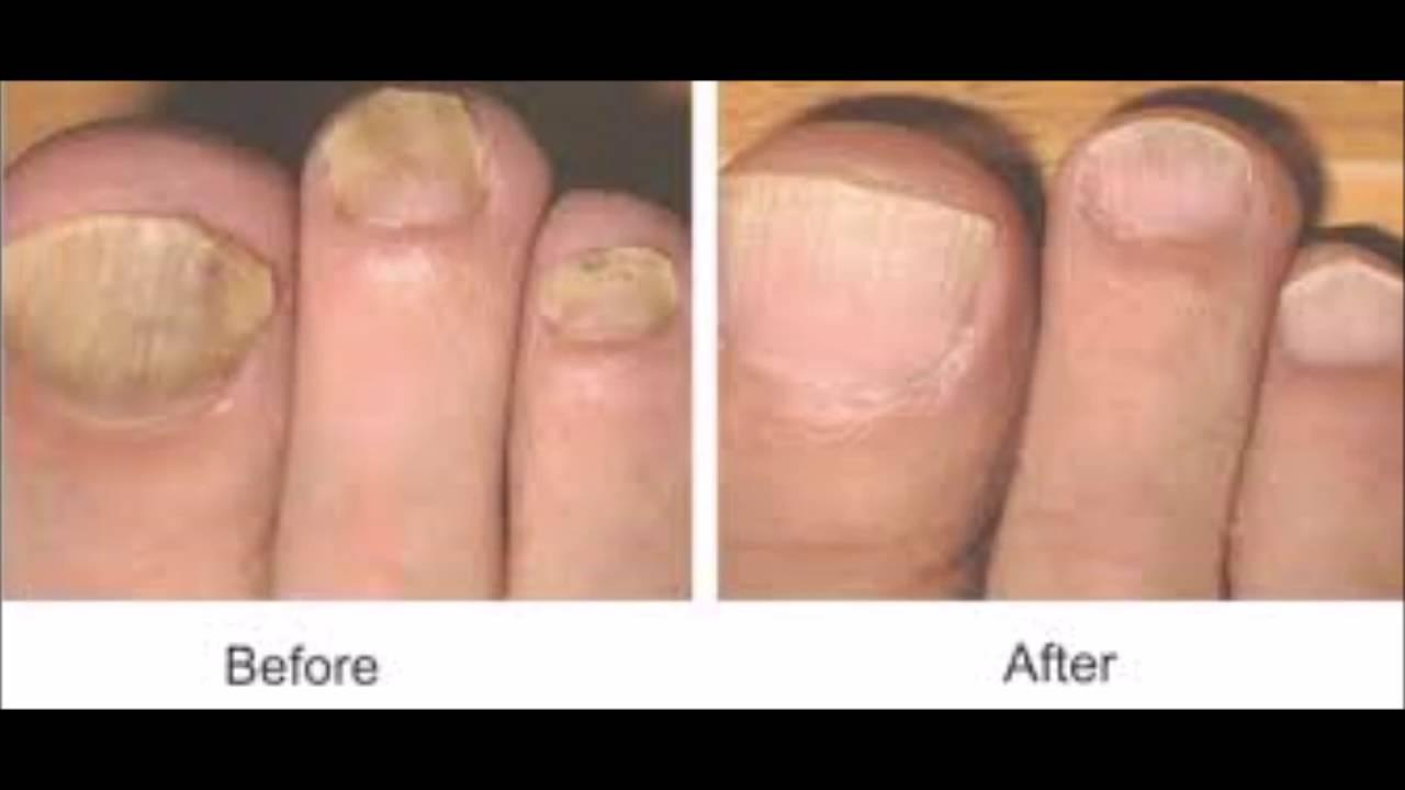 How Get Anese Toenail Fungus Nail Polish To Cover You