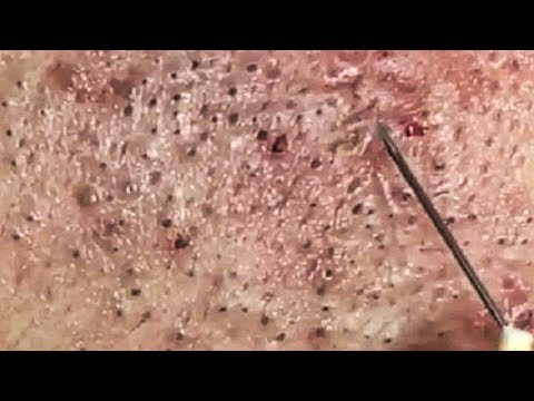 Satisfying Video Acne, Blackheads Removal Skin Care and Relaxing Sleep Music #279