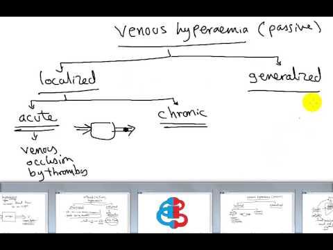 general pathology: hyperaemia..chronic venous congesion DR /SAMEH GHAZY