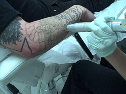 laser-tattoo-removal-on-tattoo-artist-in-los-angeles,-ca.-at-dr-tattoff-laser-tattoo-removal-clinic