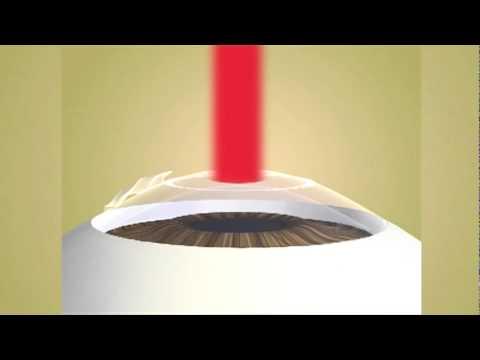 Laser Epithelial Keratomileusis (LASEK)