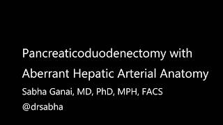 Anatomy Lesson: Aberrant Common Hepatic Artery