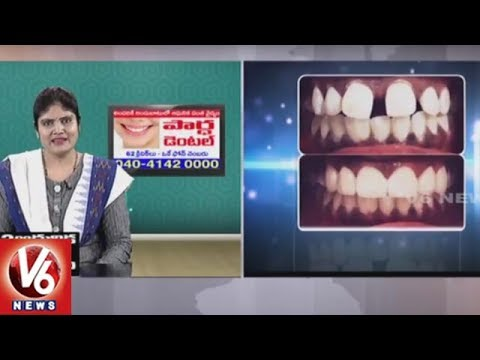 Dental Problems | Reasons & Treatment | Partha Dental Hospital | Dr Kalpana | Good Health | V6 News