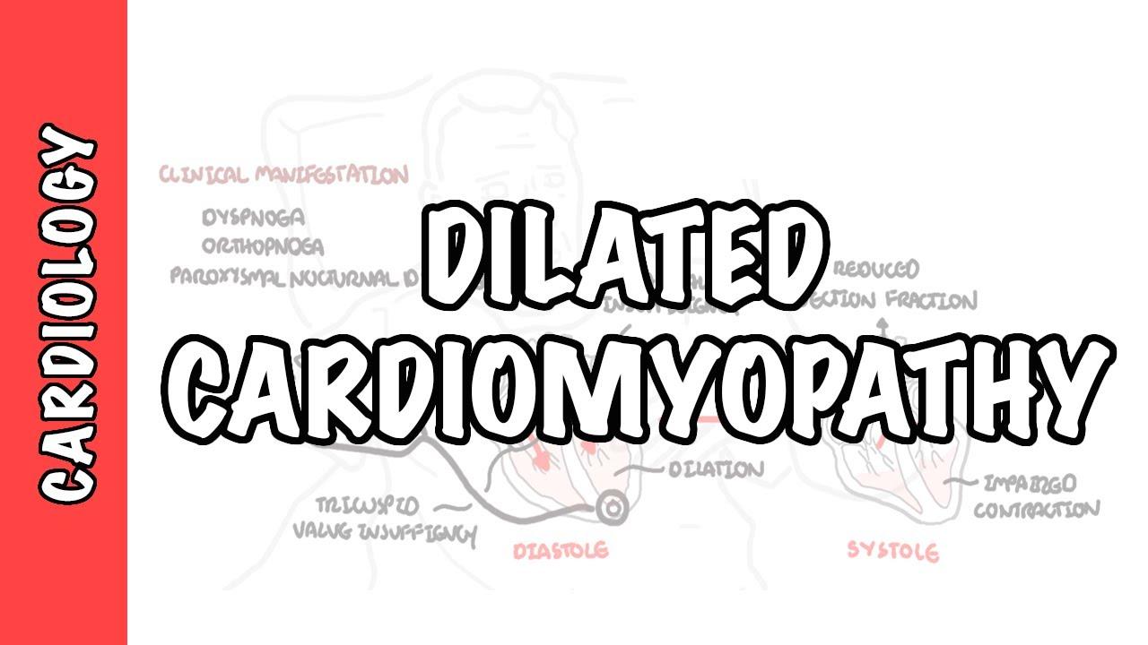 Dilated Cardiomyopathy - causes, pathophysiology and treatment