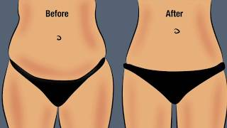4 Questions to Ask at Your Liposuction Consultation