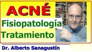 ACNÉ ✅ Fisiopatología, causas y tratamiento✅