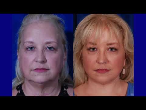 Facelift with Dr. Walters