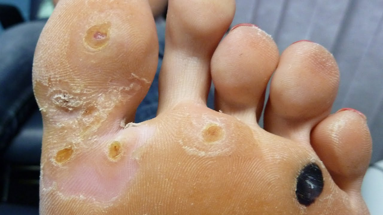 warts and how to get rid of them