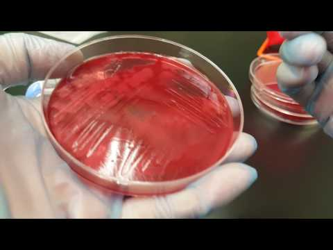 Microbiology: Clostridium perfringens biochemical testing and colonial growth