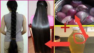 प्याज के रस में ये एक चीज मिलाकर रात में बालों में लगा लो बाल 2 INCH लंबे हो जायेंगे। HAIR GROWTH।