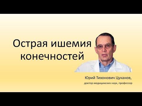 Острая ишемия конечностей, лекция для врачей | облитерирующий | тромбэмболия | атеросклероз | конечности | тихонович | гангрена | цуканов | тромбоз | артерий | острая