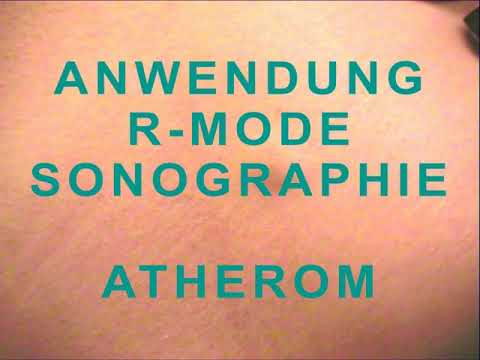 Weltneuheit: Vibrations-Sonographie erleichtert