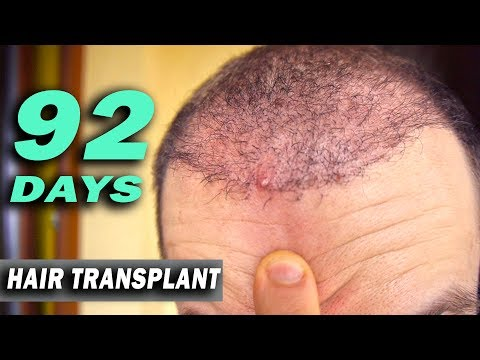 FUE Hair Transplant day 92 (post op) Istanbul, Turkey GROWTH STAGE