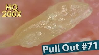 71 pull out blackheads close up 200x blackheads removal