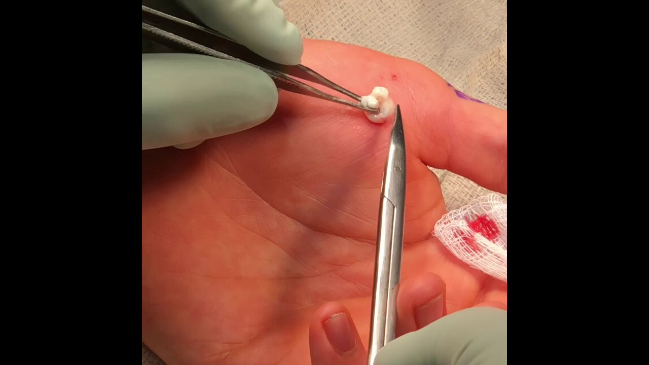 Epidermal Inclusion Cyst Removal