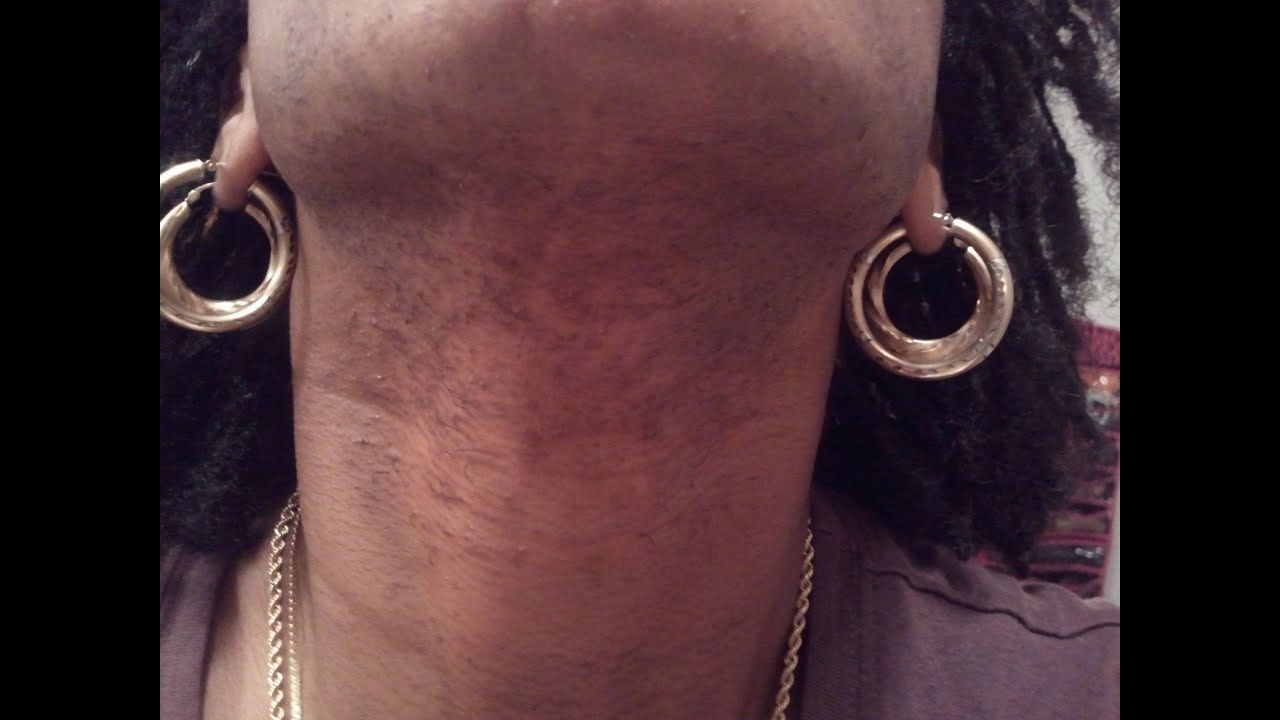 Black Skincare Q&A: Are My Bumps On My Chin & Jaw Pimples