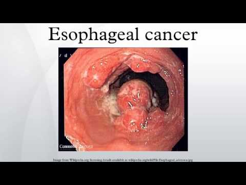 Esophageal cancer - Yo...