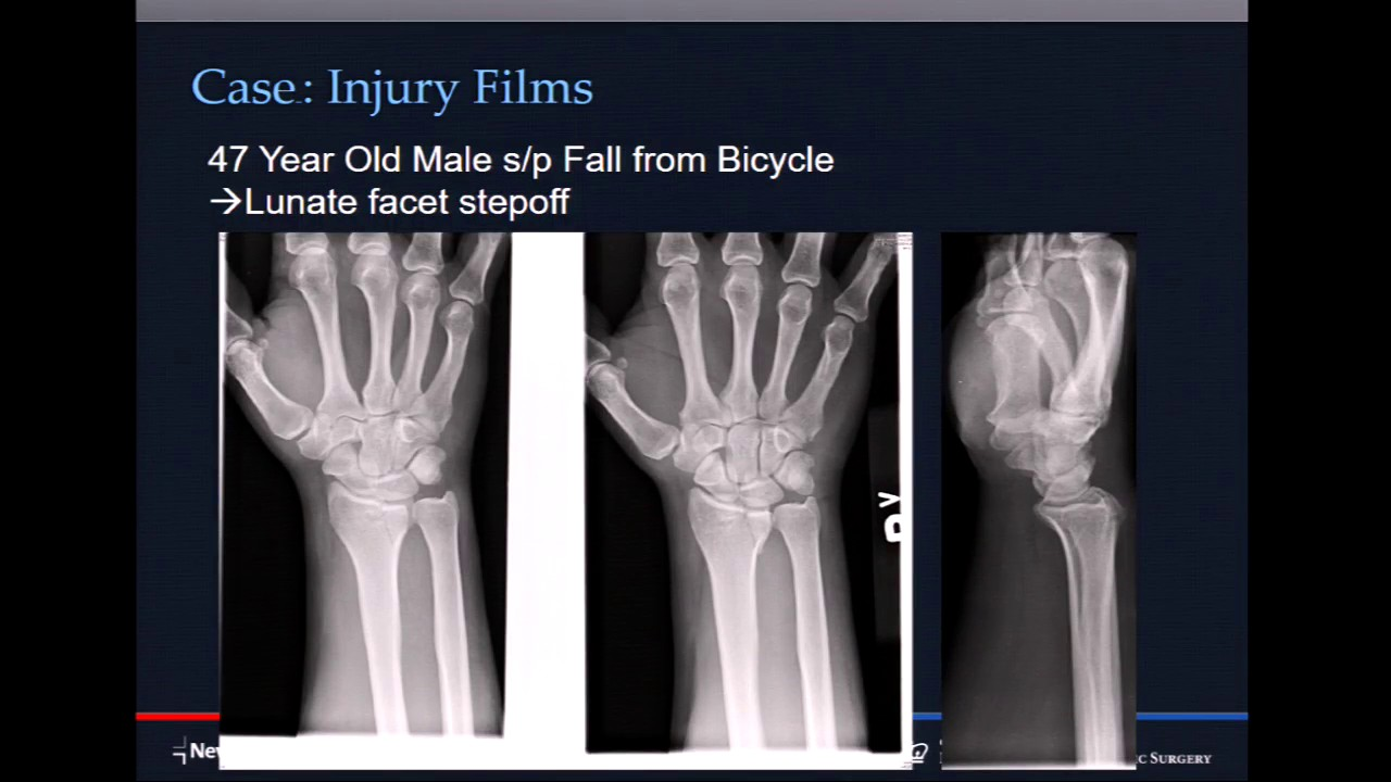 Comminuted Intraarticular Distal Radius Fractures When To Fix