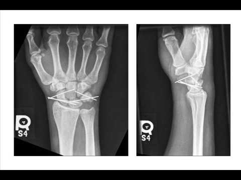 Hand & Wrist Injuries in Athletes: Part 2
