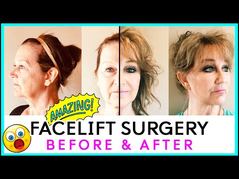 Facelift Surgery In KOREA! Pt. 2   AMAZING BEFORE AND AFTER   DocfinderKorea & JK Plastic Surgery