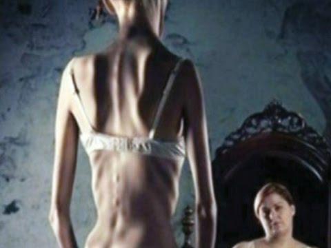 Опасная диета: анорексия среди подростков приобретает характер эпидемии