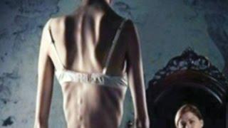 видео Как заболеть анорексией ? Причины, последствия, результат. Анорексия и булимия