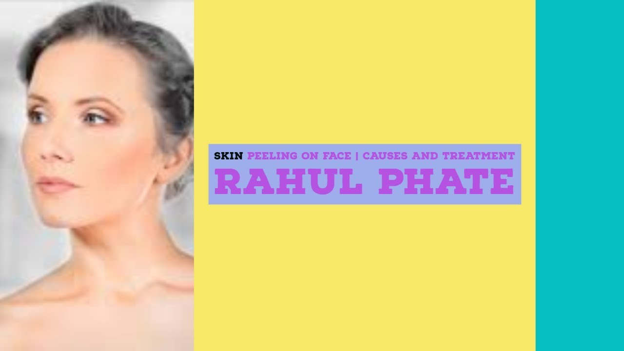 Skin Peeling on Face  Causes and Treatment with Rahul Phate ROOPADA 11