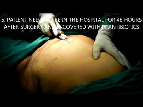 whole body liposuction in Hyderabad