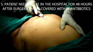 whole body liposuction in Hyderabad Thumbnail