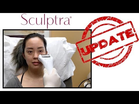 SCULPTRA UPDATE | SEREIN WU