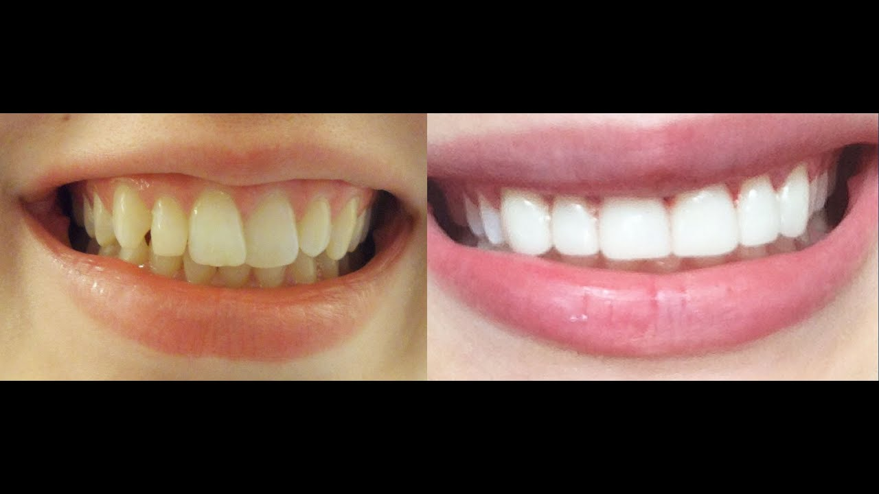 How to align teeth without braces, is it possible 41