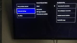 How to Fix DHCP Server Error Issue for Xbox One