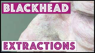 Pops! More blackheads, TNTC. It's his first session so be patient! For medical education- NSFE.