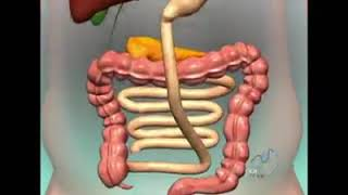 Duodenal-Switch