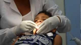 Rafael no dentista arrancando um dente de leite... antigamente era na voadora