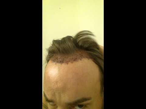 Hair transplant post op day 1
