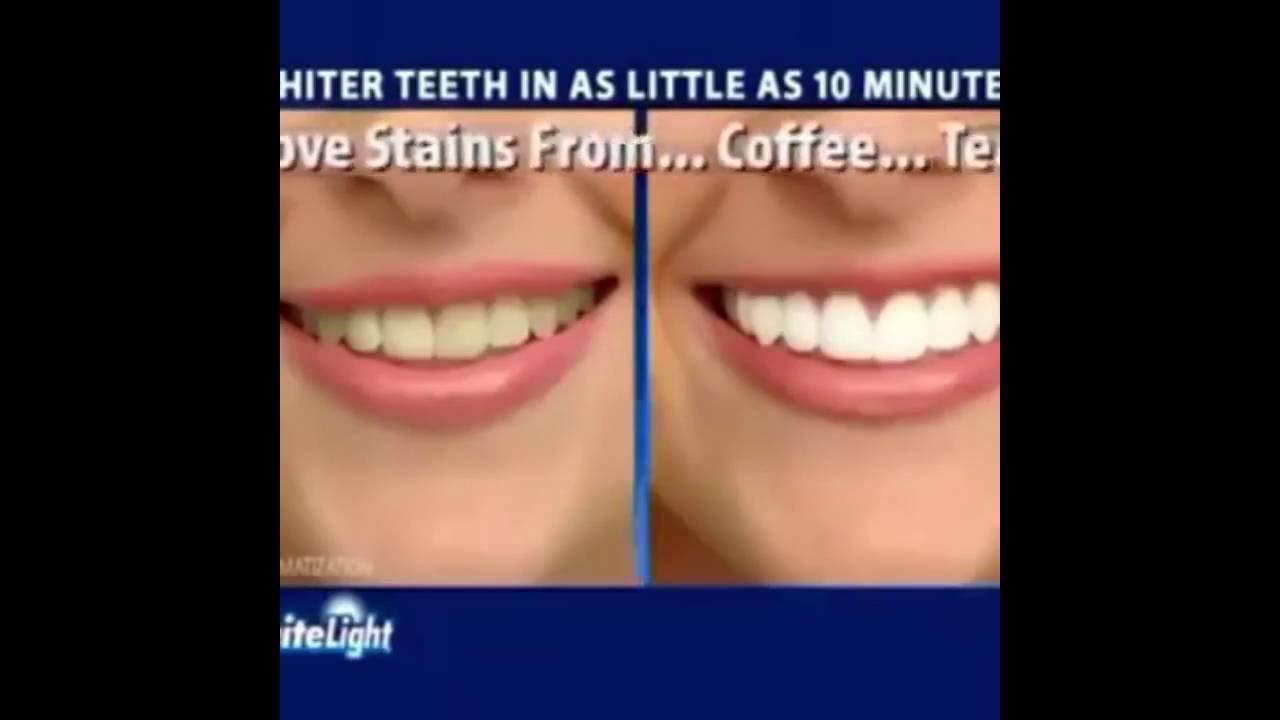 Cara Memutihkan Gigi Cepat Light Teeth Youtube